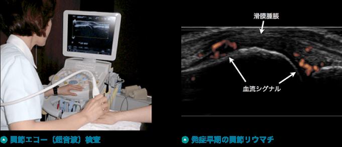 関節エコー(超音波)検査 発症早期の関節リウマチ